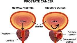 سرطان پروستات، علائم و درمان