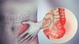 سندرم روده تحریک پذیر یا آی بی اس (IBS)