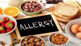 آلرژی غذایی، نشانه ها و درمان