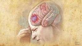 علائم تومور مغزی: تشخیص و درمان تومور مغزی