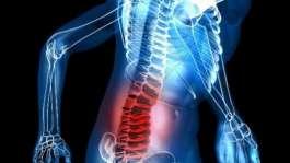 کمر درد: علائم، عوامل و درمان آن