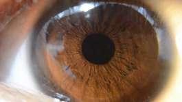 عوامل تعیین کننده رنگ چشم چیست؟
