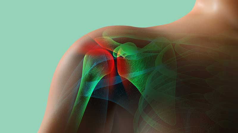 درد شانه: علائم، دلایل، راههای پیشگیری و درمان