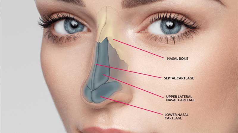 رینوپلاستی بینی